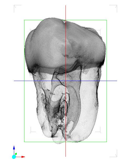 歯 MinIP スライス/横回転