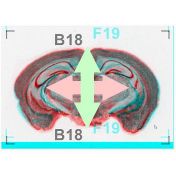 スライス画像(連続切片/医用画像/FIB-SEM/SBF-SEM)位置合わせ